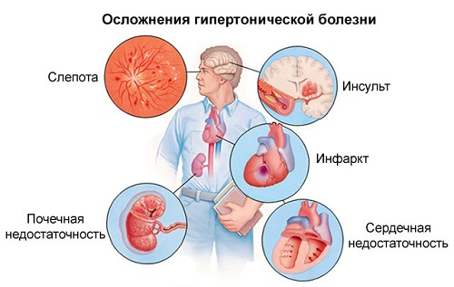 angina hipertónia kockázati fok