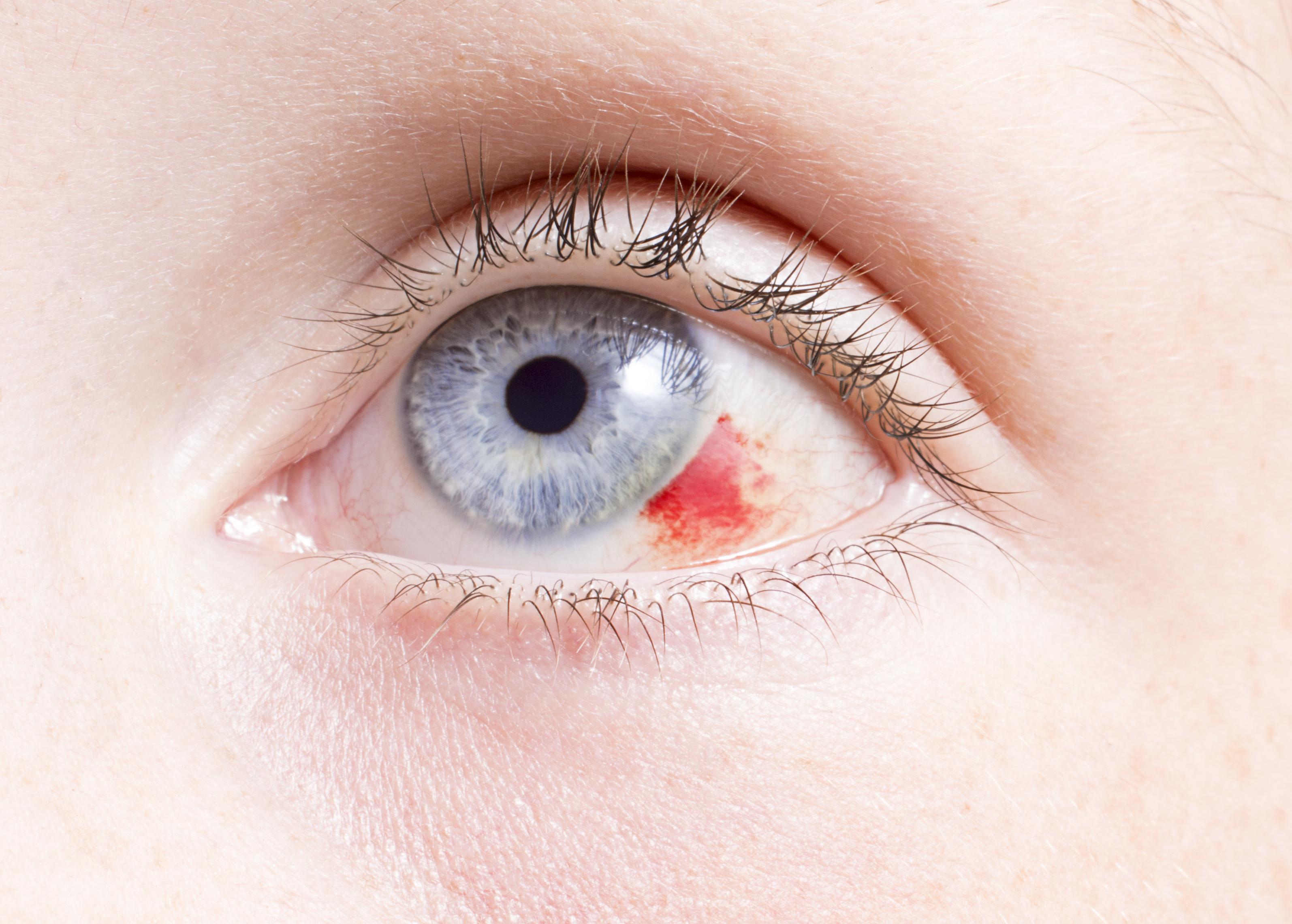a szemek magas vérnyomásban fájnak Hel gyógyszer magas vérnyomás ellen