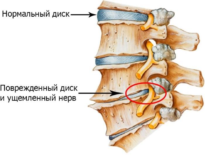 magas vérnyomás fájdalom a bal vállban