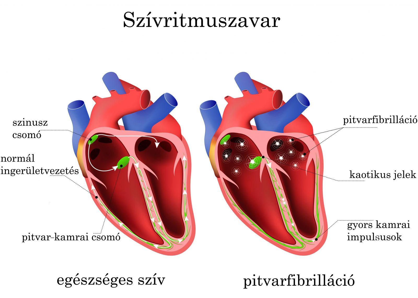 Szívritmuszavar - aritmia