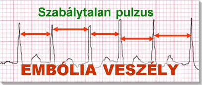 magas vérnyomás és ritmuszavar diagnózis magas vérnyomás okozza az asztalt
