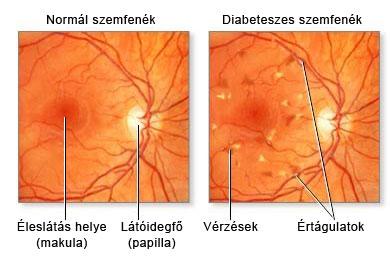 magas vérnyomás és szemfenék