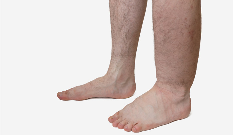 magas vérnyomás és duzzadt lábak
