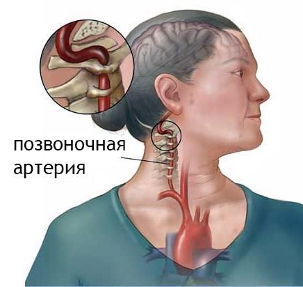 Nyaki osteochondrozistól származó gélek