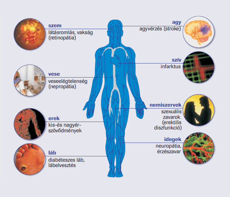cukorbetegség magas vérnyomás tachycardia magas vérnyomású szívizomgyulladás