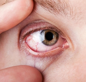 magas vérnyomású szem vérzéses kezelése mit lehet és mit nem magas vérnyomás esetén