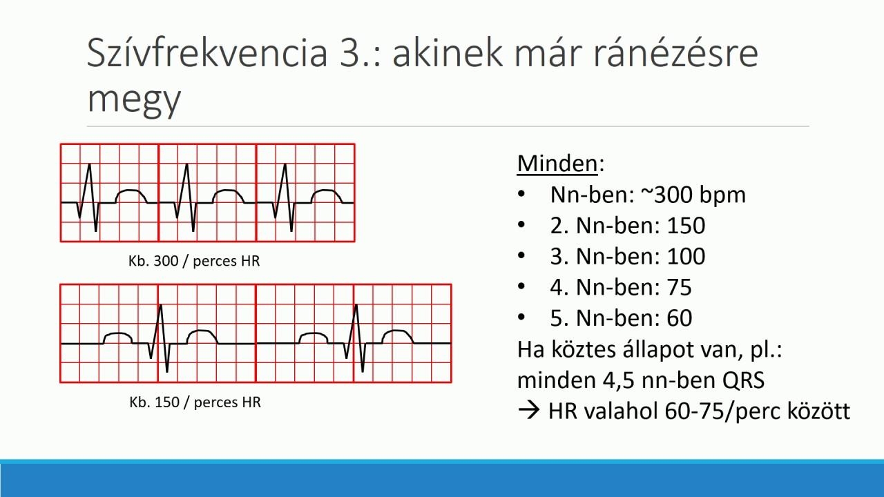 hogy felmentettek hipertóniából a szív magas vérnyomása normális