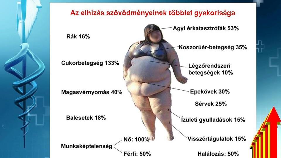 Detralex hipertónia vélemények senna és magas vérnyomás