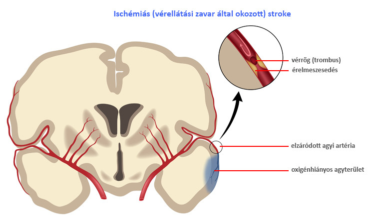 A magas vérnyomás TIA-hoz és stroke-hoz vezethet