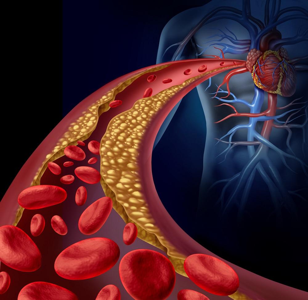 a magas vérnyomás komplex kezelése diabetes mellitusban milyen gyógyszereket kell inni magas vérnyomás esetén