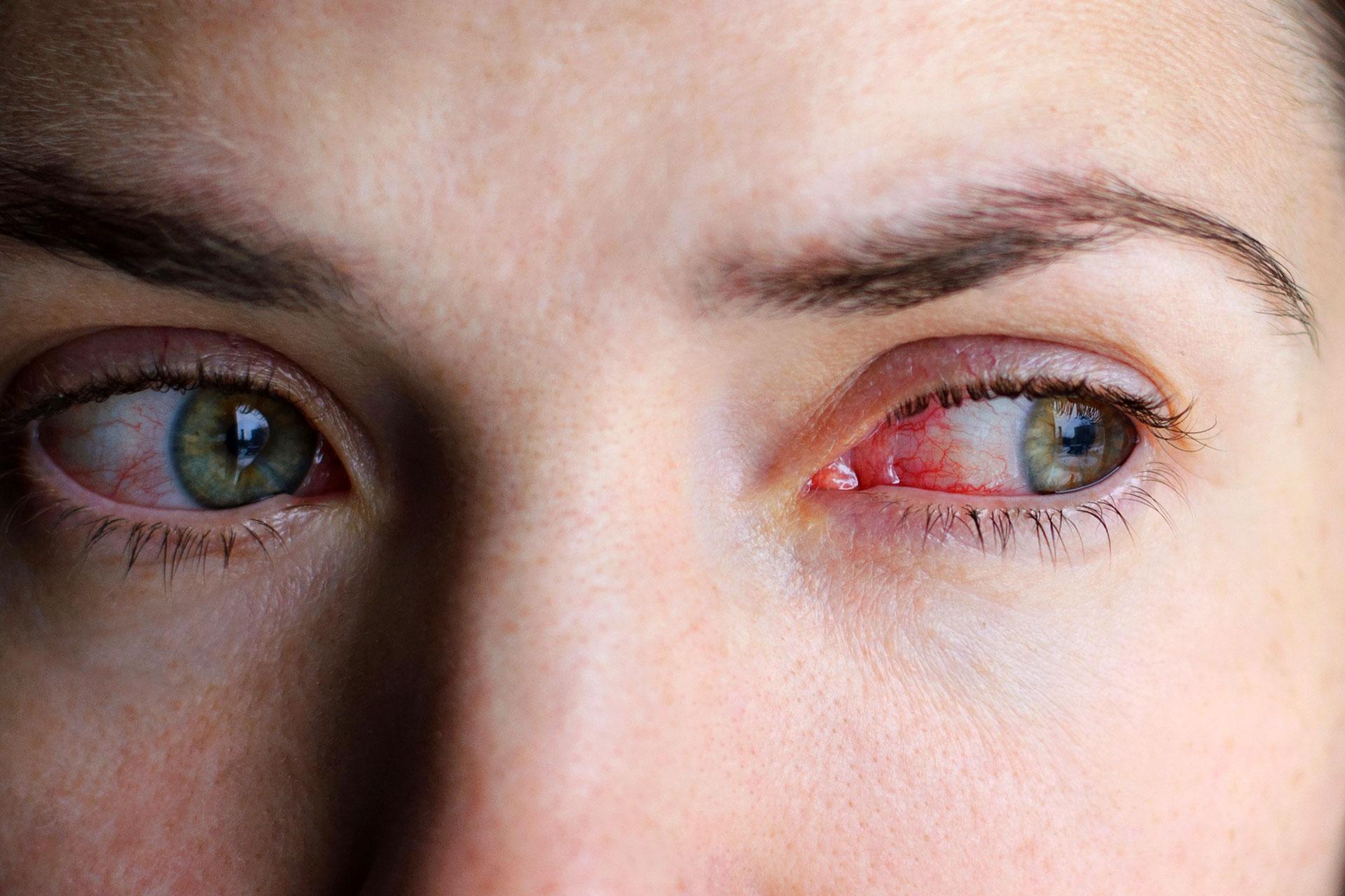 vörös szemek magas vérnyomásban a só hipertónia mértéke