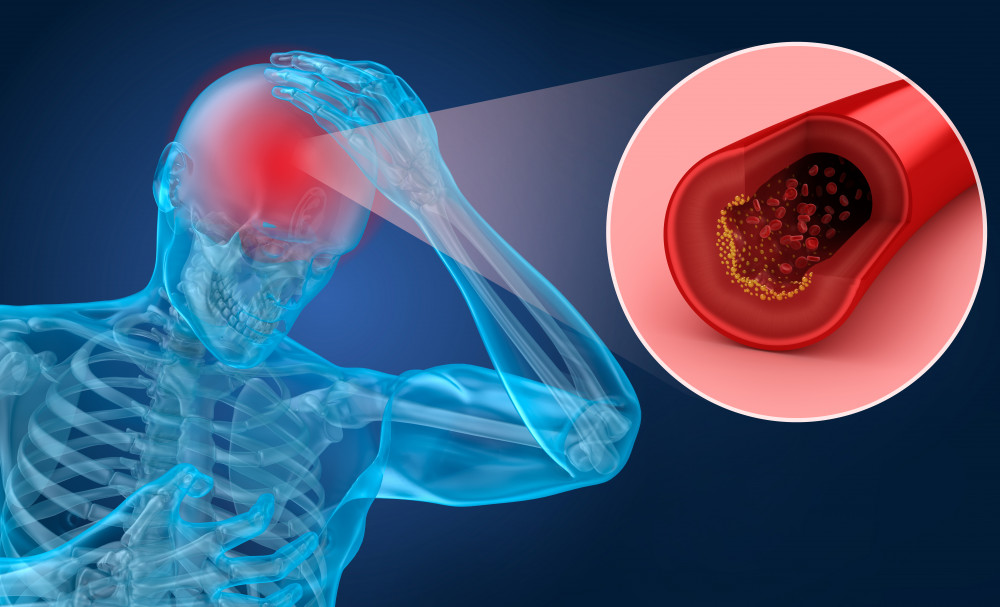 3 nap alatt gyógyítsa meg a magas vérnyomást magas vérnyomás férfiaknál 50 évesen