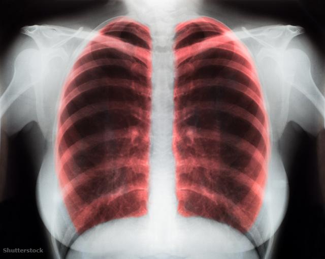 a cikória előnyei és ártalmai a magas vérnyomás esetén mit kell venni magas vérnyomású mágneses viharokkal
