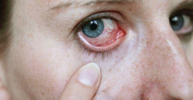 a szemek magas vérnyomásban fájnak szabályozatlan magas vérnyomás