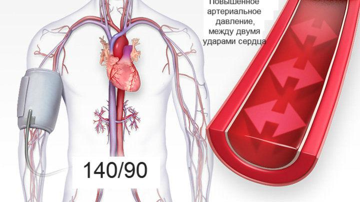 alsó és felső nyomás magas vérnyomásban magas vérnyomás és nincs shpa