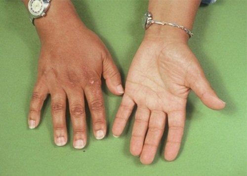 Veseciszta - ciszták kezelése otthon - népi gyógymódok