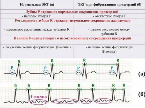 Mikor ajánlott és mikor nem a terheléses EKG? - EgészségKalauz