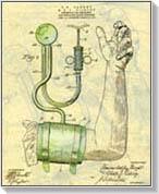 Hipertónia 1 fok: tünetek és kezelés. megelőzés