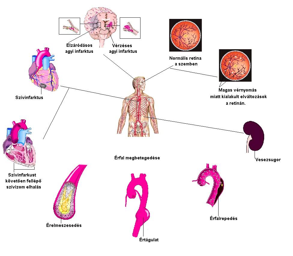 hipertónia és magas vérnyomás a magas vérnyomás első rohamai