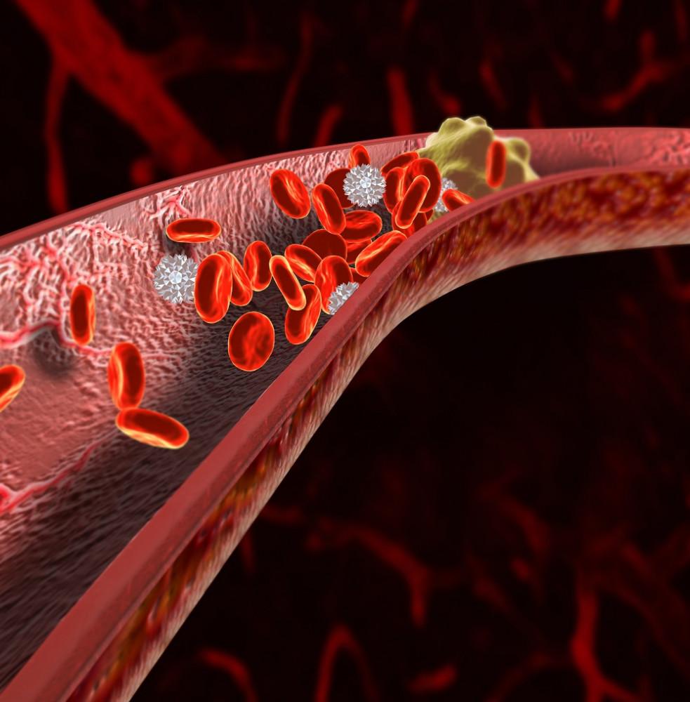 A magas vérnyomás leggyakoribb szövődményei