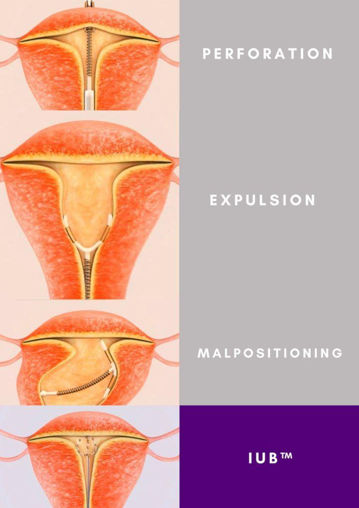 lehetséges-e spirált hipertóniában elhelyezni verapamil hipertónia