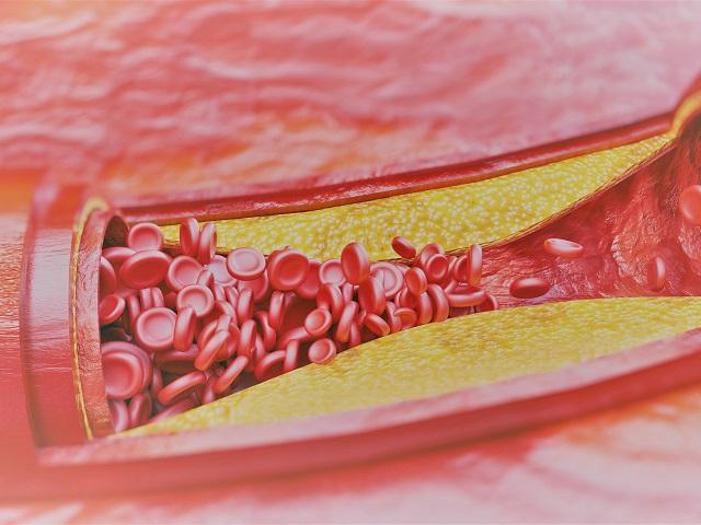 Magas vérnyomás kezelés öregség - elektromoskerekparakkumulator.hu