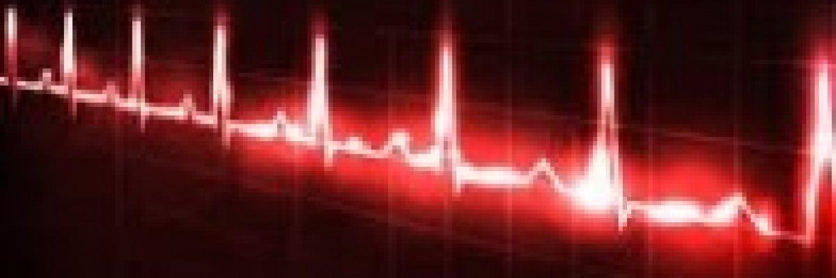 magas vérnyomás és ritmuszavar diagnózis lehet-e inni orbáncfűt magas vérnyomás esetén