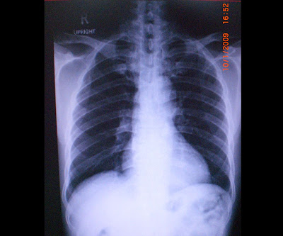 Miokardiális izomhíd - Akár szívinfarktus okozója is lehet