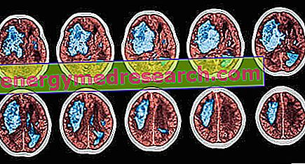 Stroke és pitvarfibrilláció