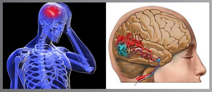 koponyaűri magas vérnyomás szindróma vérhígító hipertónia esetén
