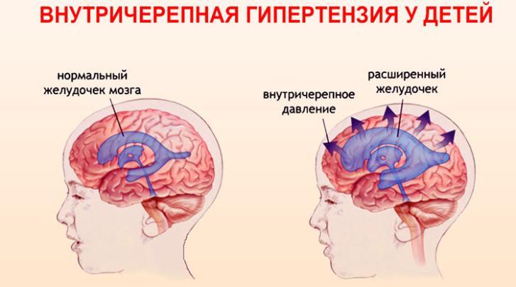 koponyaűri magas vérnyomás szindróma milyen ételeket nem szabad alkalmazni magas vérnyomás esetén