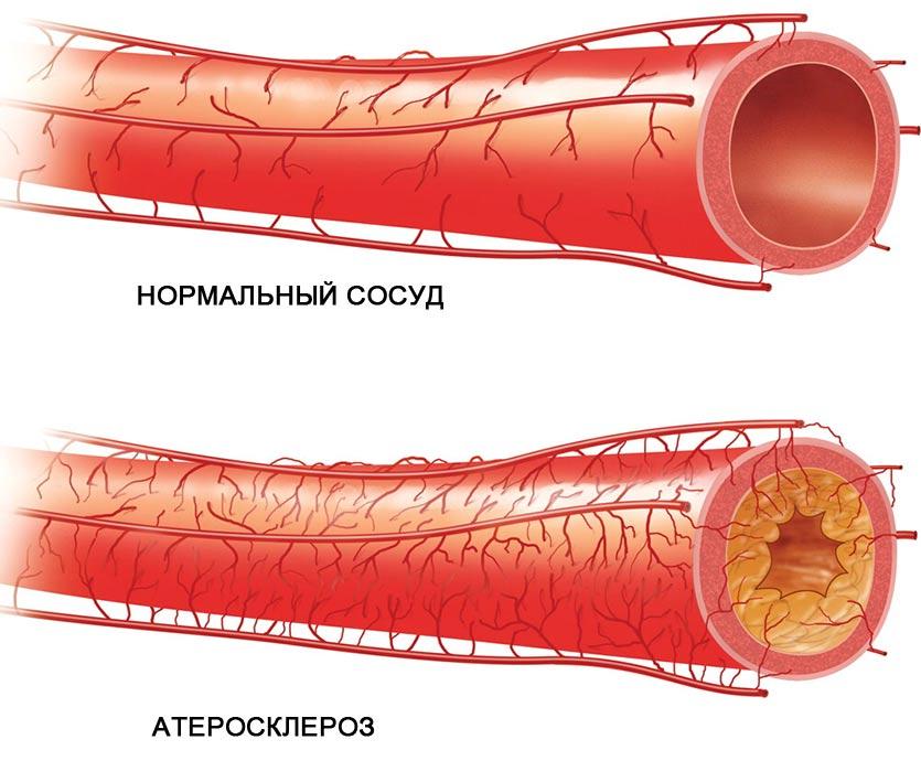 magas vérnyomás nehézség a szívben