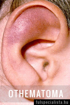 A füldugulás okai
