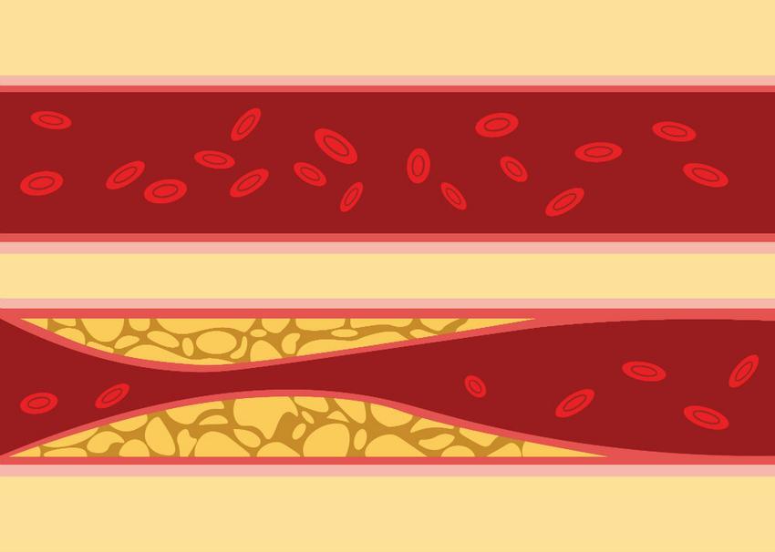 Mi a szív kamrai bal kamrai hipertrófia, jellemző jelek és kezelés