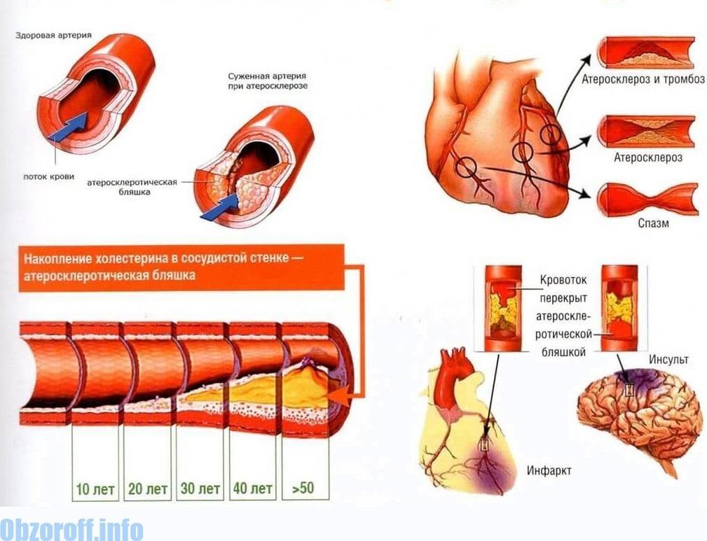 magas vérnyomás kezelése atenolollal