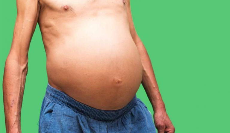 az emberi test aktív pontjai magas vérnyomásban magas vérnyomás küzdelem módszerei