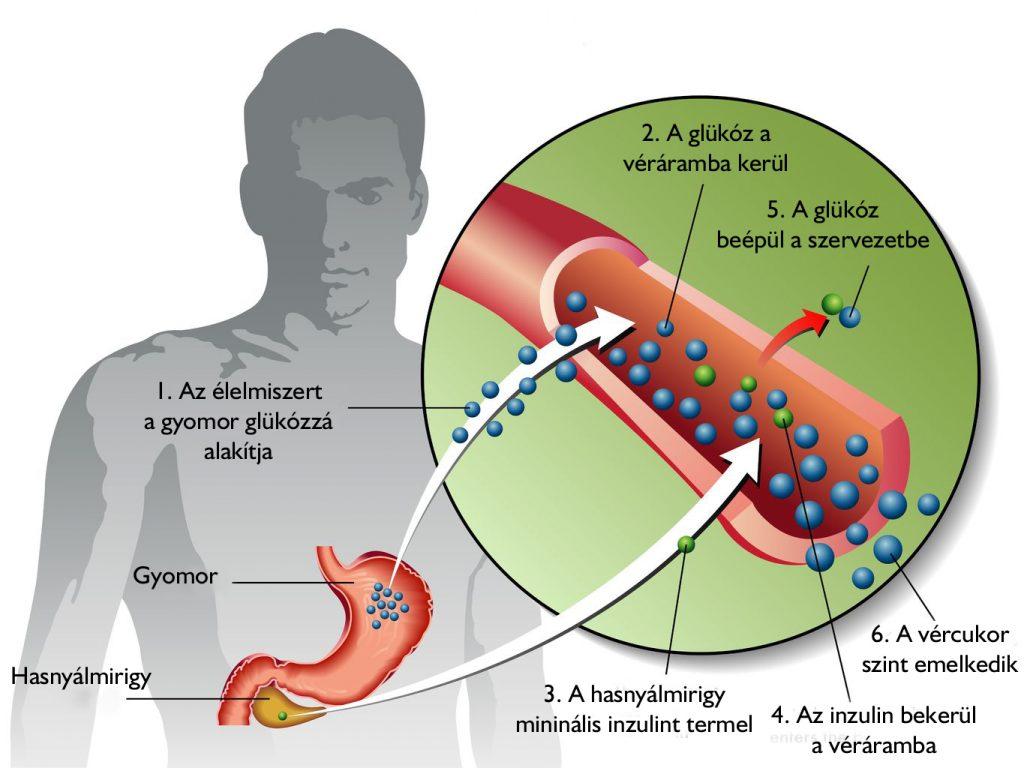 magas vérnyomás inzulinfüggő cukorbetegségben