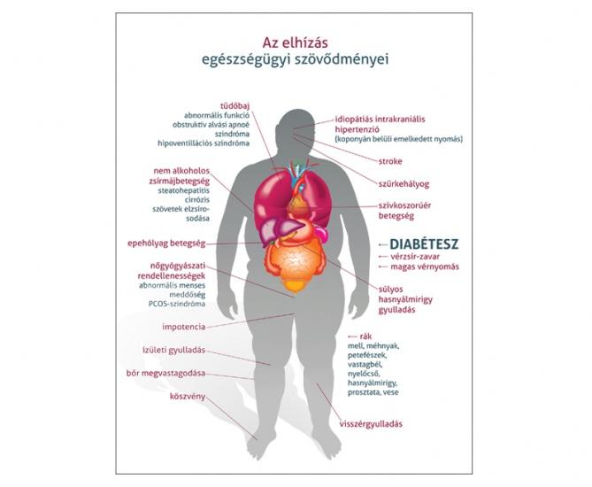 magas fokú ovr 1 stádiumú magas vérnyomás esetén szintetikus eredetű