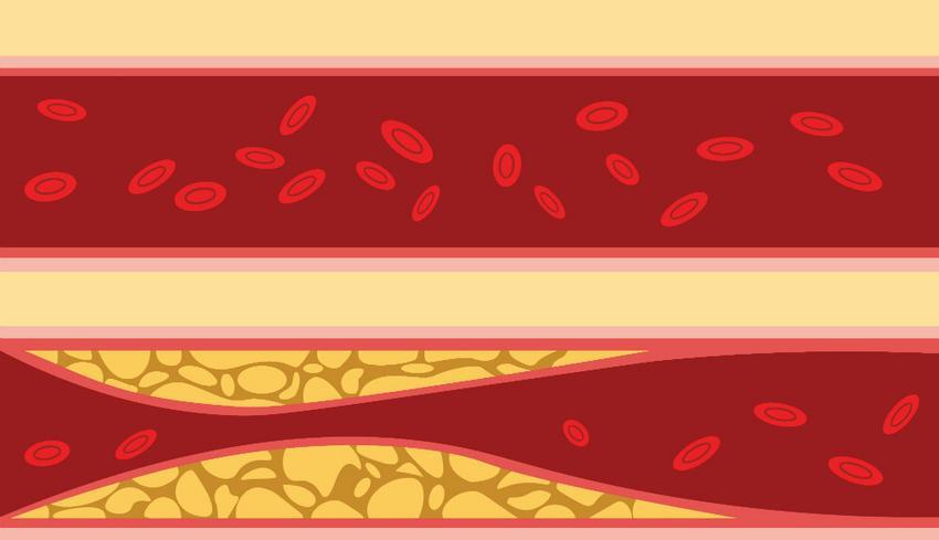 hipertrófia szív hipertónia