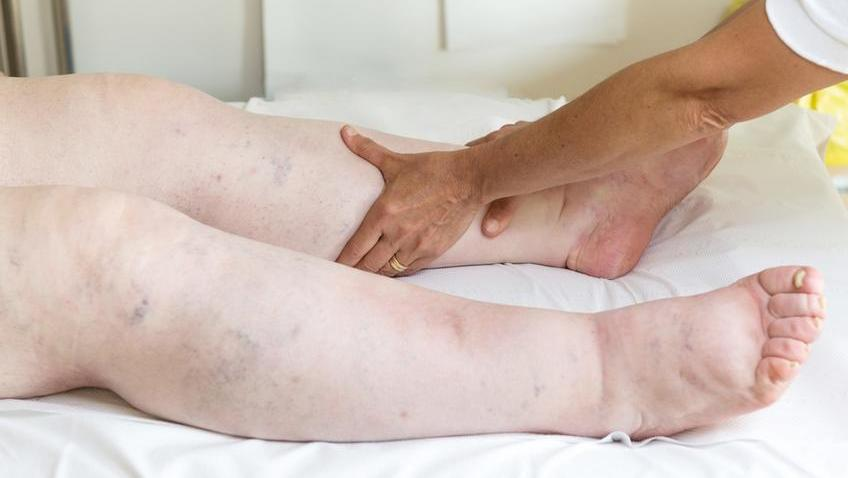a magas vérnyomású szédülés kezelése népi gyógymódokkal asztali pszichoszomatika hipertónia