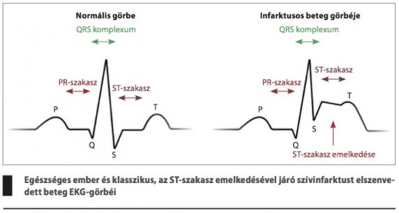 a magas vérnyomás akut formája