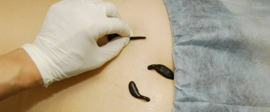 A hirudoterápia gyakorlata (orvosi piócákkal való kezelés) és megállóhelyek