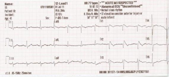 EKG elemzés magas vérnyomás esetén aritmia műtétre