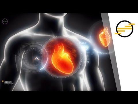 magas vérnyomás az SSO 4 kockázata