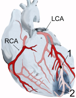 magas vérnyomás és a szív iszkémiája jégkrém magas vérnyomás ellen