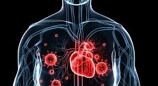 a mellkasi hipertónia osteochondrosis magas vérnyomás ápolók számára