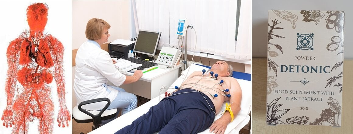 Mik a modern gyógyszerek a magas vérnyomás ellen - elektromoskerekparakkumulator.hu