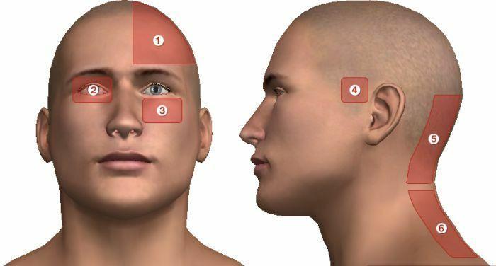 tarkó fejfájás magas vérnyomás